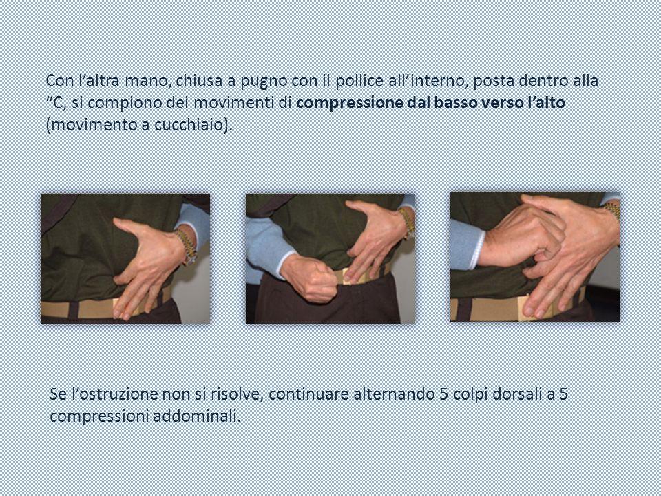 Se l'ostruzione non si risolve, continuare alternando 5 colpi dorsali a 5 compressioni addominali. Con l'altra mano, chiusa a pugno con il pollice all