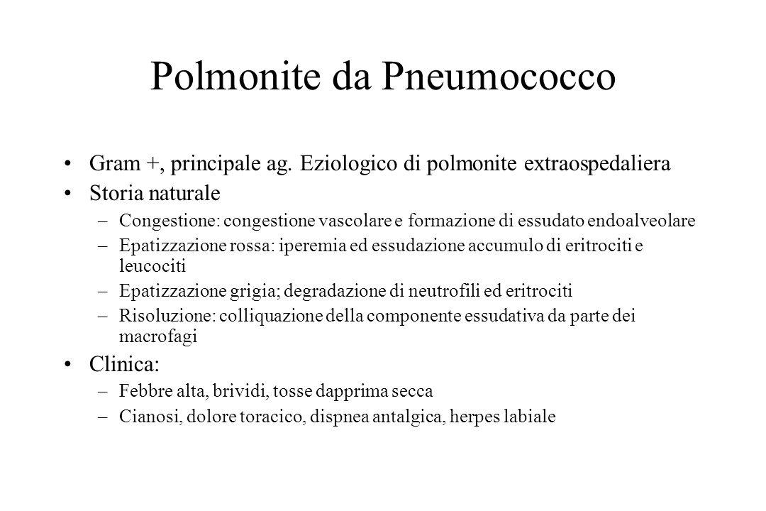 Polmonite da Pneumococco Gram +, principale ag. Eziologico di polmonite extraospedaliera Storia naturale –Congestione: congestione vascolare e formazi