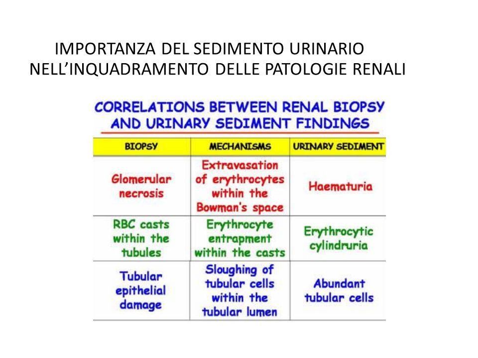IMPORTANZA DEL SEDIMENTO URINARIO NELL'INQUADRAMENTO DELLE PATOLOGIE RENALI