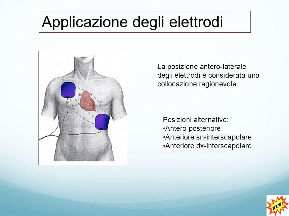Applicazione degli elettrodi La posizione antero-laterale degli elettrodi è considerata una collocazione ragionevole Posizioni alternative: Antero-posteriore Anteriore sn-interscapolare Anteriore dx-interscapolare