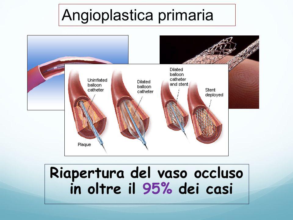 Riapertura del vaso occluso in oltre il 95% dei casi Angioplastica primaria