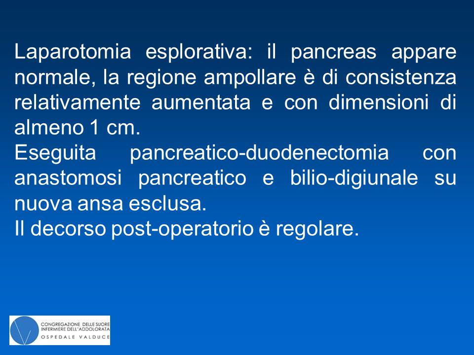 Laparotomia esplorativa: il pancreas appare normale, la regione ampollare è di consistenza relativamente aumentata e con dimensioni di almeno 1 cm. Es
