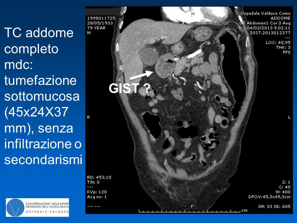 TC addome completo mdc: tumefazione sottomucosa (45x24X37 mm), senza infiltrazione o secondarismi GIST ?