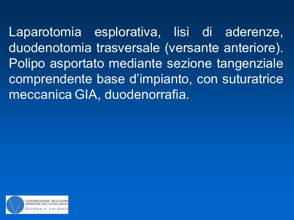 Laparotomia esplorativa, lisi di aderenze, duodenotomia trasversale (versante anteriore). Polipo asportato mediante sezione tangenziale comprendente b