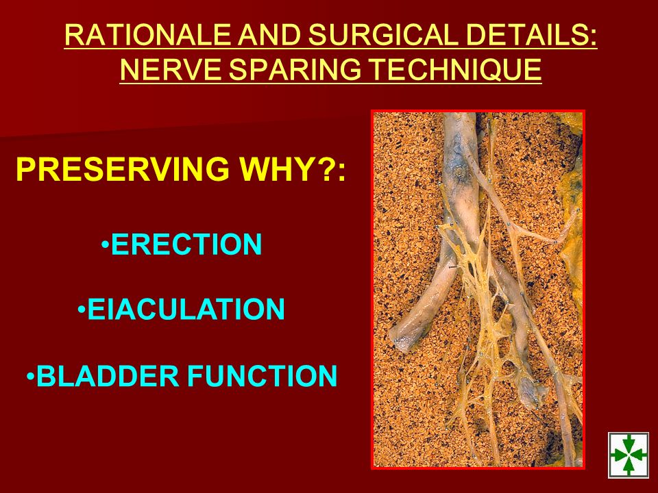 PRESERVING WHY?: ERECTION BLADDER FUNCTION EIACULATION RATIONALE AND SURGICAL DETAILS: NERVE SPARING TECHNIQUE
