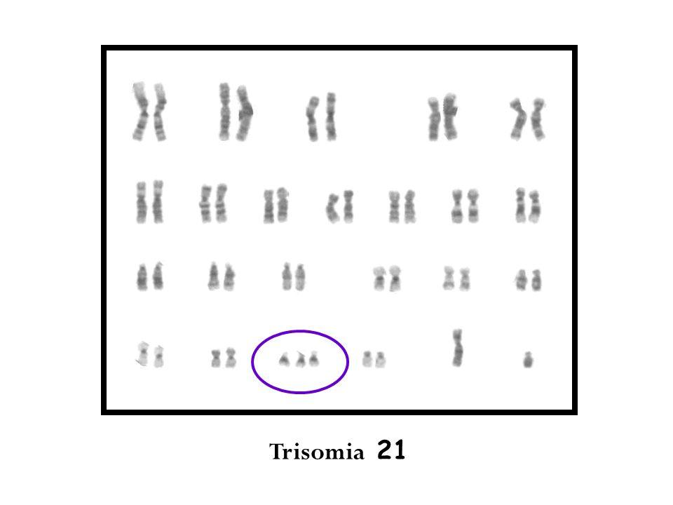 Trisomia 21