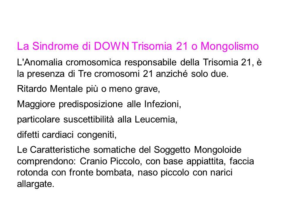 La Sindrome di DOWN Trisomia 21 o Mongolismo L Anomalia cromosomica responsabile della Trisomia 21, è la presenza di Tre cromosomi 21 anziché solo due.