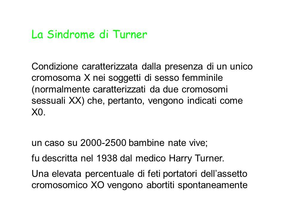 La Sindrome di Turner Condizione caratterizzata dalla presenza di un unico cromosoma X nei soggetti di sesso femminile (normalmente caratterizzati da due cromosomi sessuali XX) che, pertanto, vengono indicati come X0.