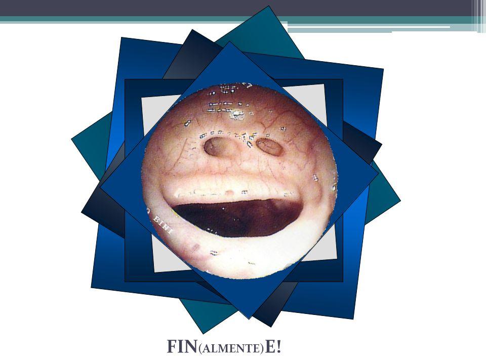 FIN (ALMENTE) E!