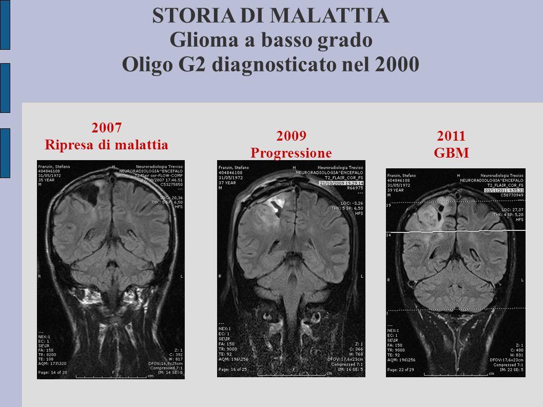 STORIA DI MALATTIA Glioma a basso grado Oligo G2 diagnosticato nel 2000 2007 Ripresa di malattia 2009 Progressione 2011 GBM