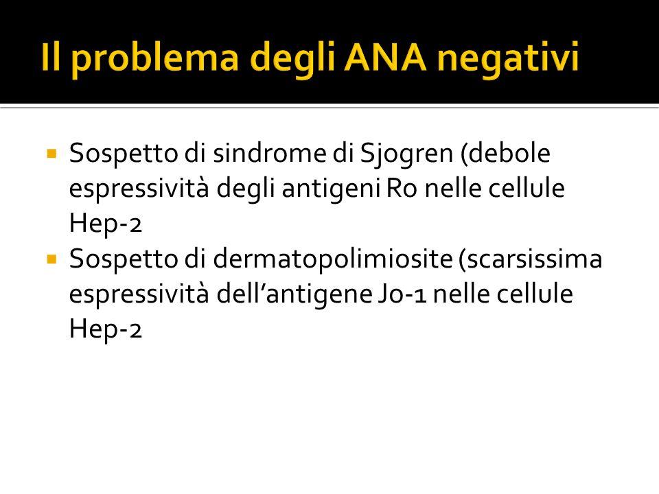  Sospetto di sindrome di Sjogren (debole espressività degli antigeni Ro nelle cellule Hep-2  Sospetto di dermatopolimiosite (scarsissima espressivit