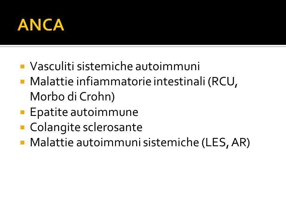  Vasculiti sistemiche autoimmuni  Malattie infiammatorie intestinali (RCU, Morbo di Crohn)  Epatite autoimmune  Colangite sclerosante  Malattie a