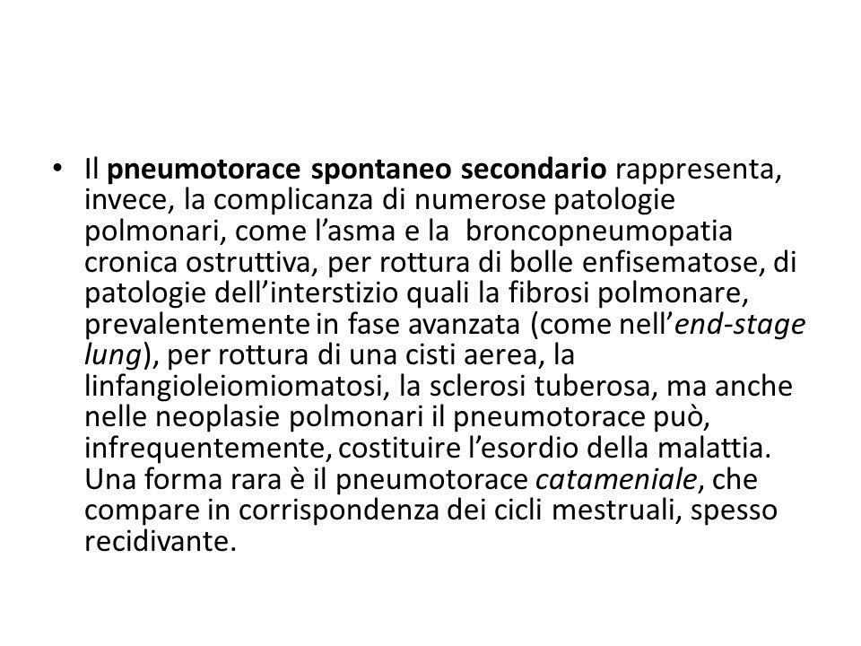 Il pneumotorace spontaneo secondario rappresenta, invece, la complicanza di numerose patologie polmonari, come l'asma e la broncopneumopatia cronica o