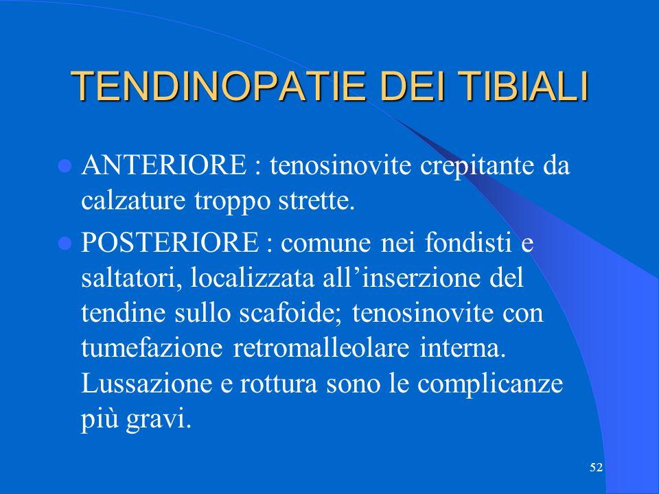 52 TENDINOPATIE DEI TIBIALI ANTERIORE : tenosinovite crepitante da calzature troppo strette.