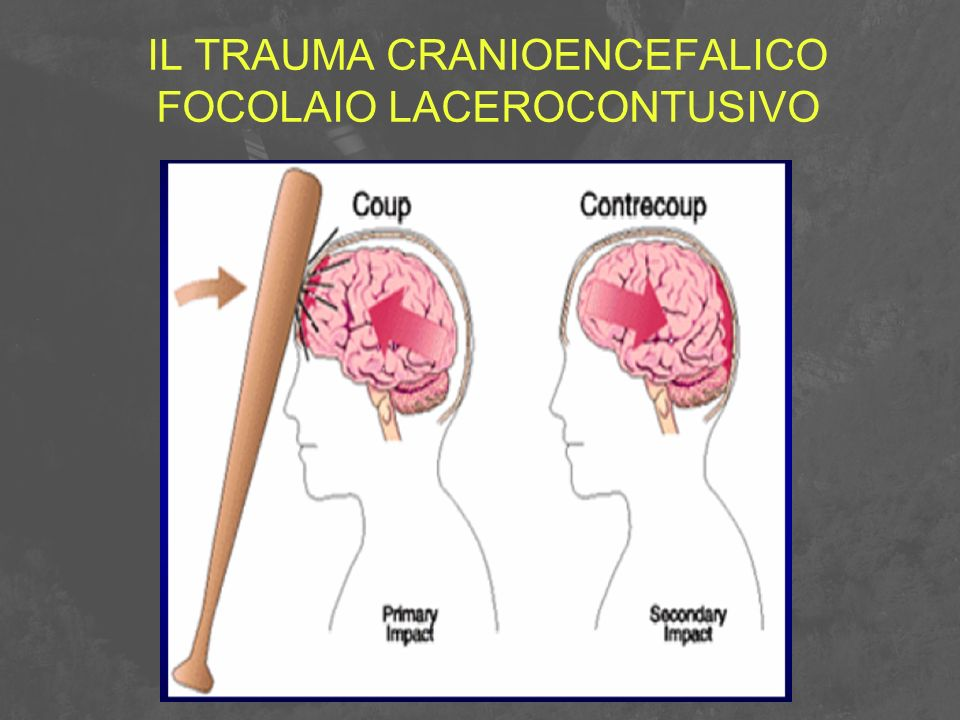 IL TRAUMA CRANIOENCEFALICO FOCOLAIO LACEROCONTUSIVO