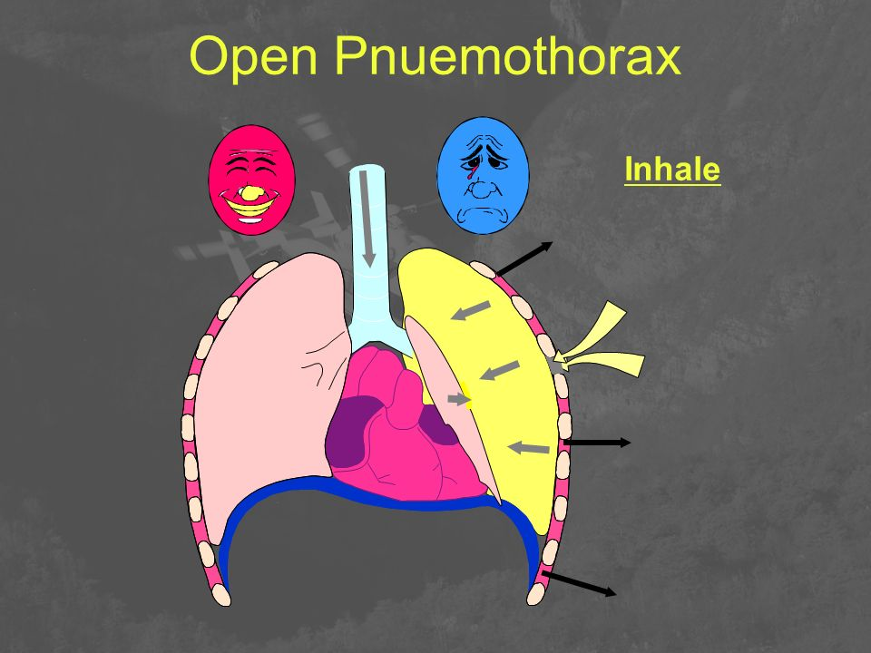 Open Pnuemothorax Inhale