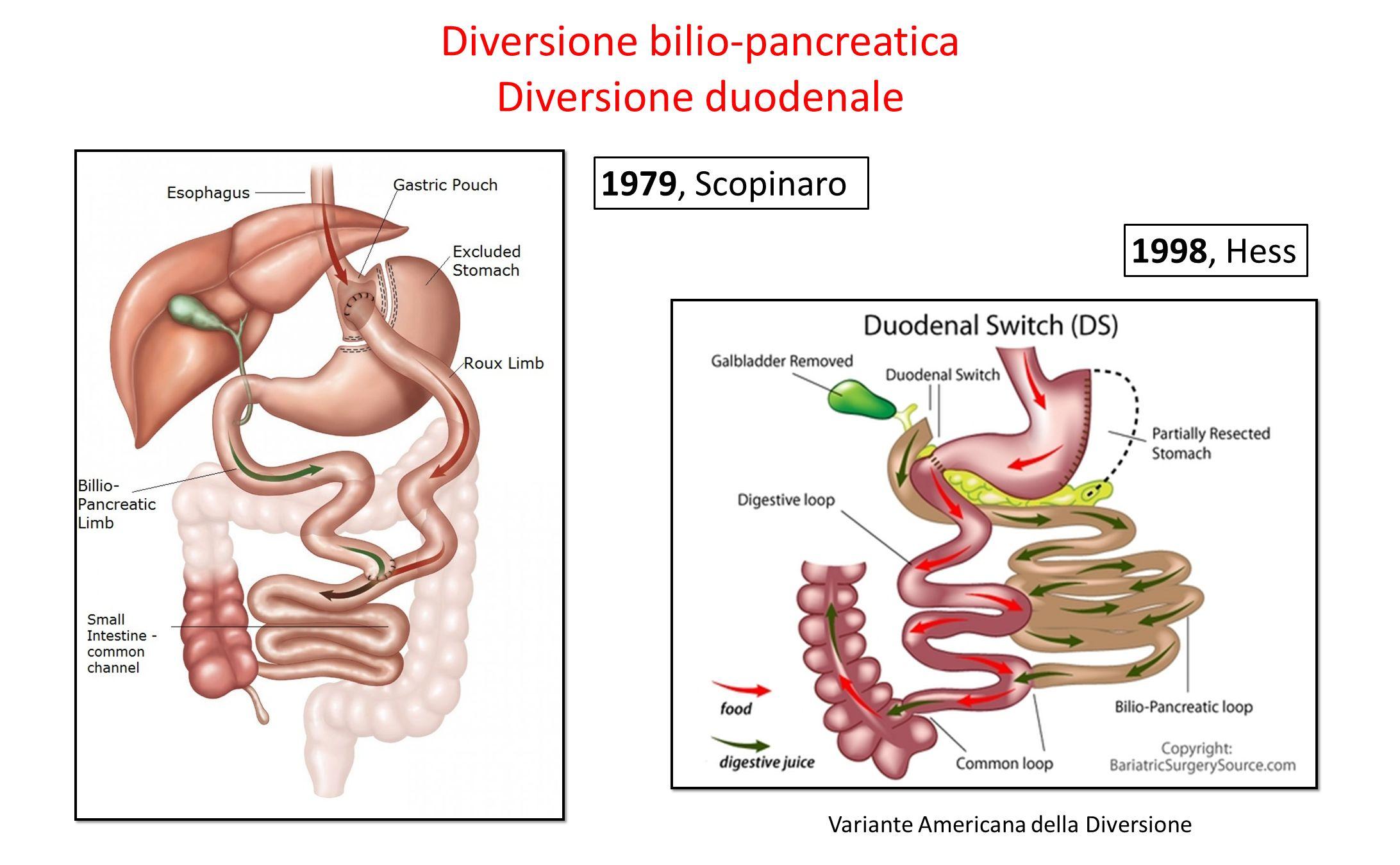 Diversione bilio-pancreatica Diversione duodenale 1979, Scopinaro Variante Americana della Diversione 1998, Hess