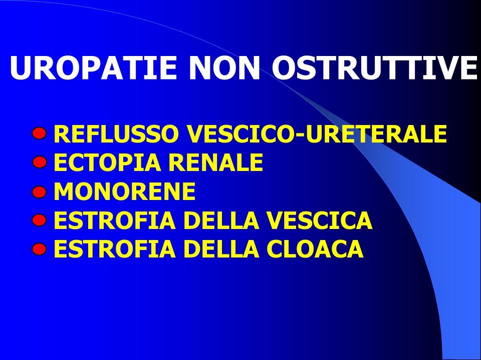 UROPATIE NON OSTRUTTIVE REFLUSSO VESCICO-URETERALE ECTOPIA RENALE MONORENE ESTROFIA DELLA VESCICA ESTROFIA DELLA CLOACA