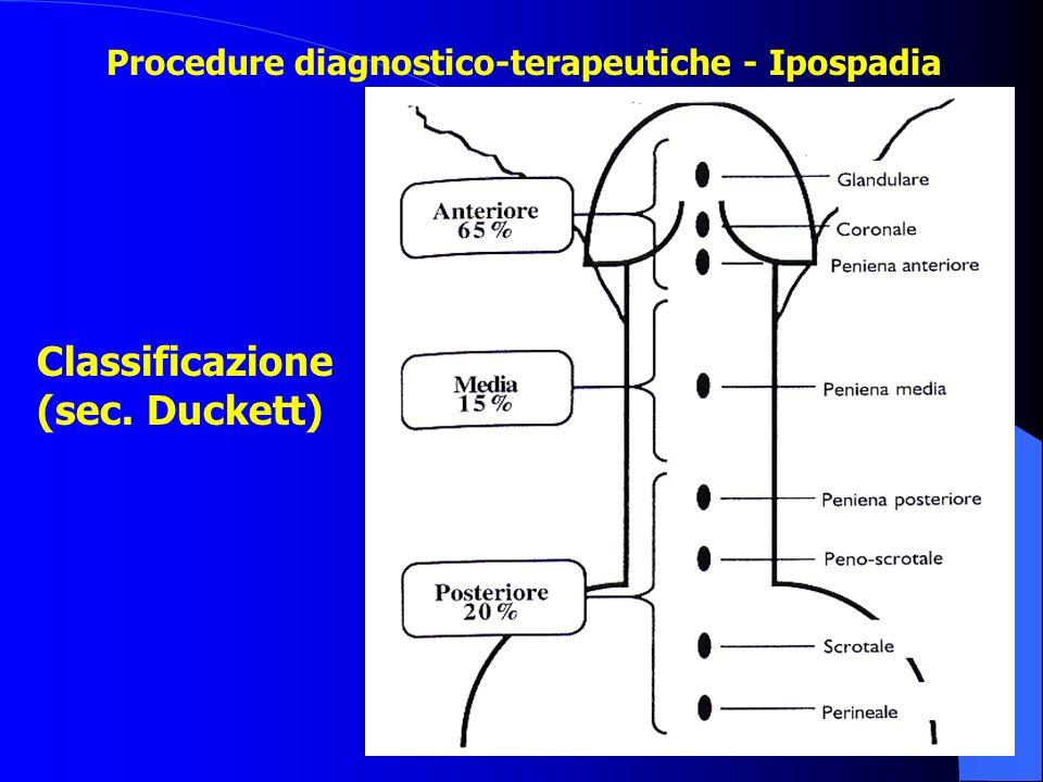 Classificazione (sec. Duckett) Procedure diagnostico-terapeutiche - Ipospadia
