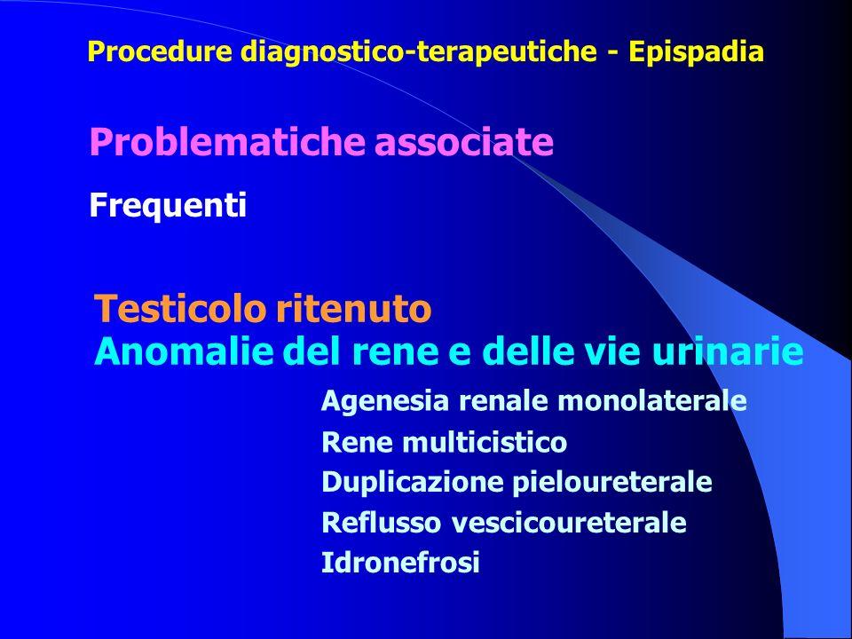 Problematiche associate Frequenti Testicolo ritenuto Anomalie del rene e delle vie urinarie Agenesia renale monolaterale Rene multicistico Duplicazion