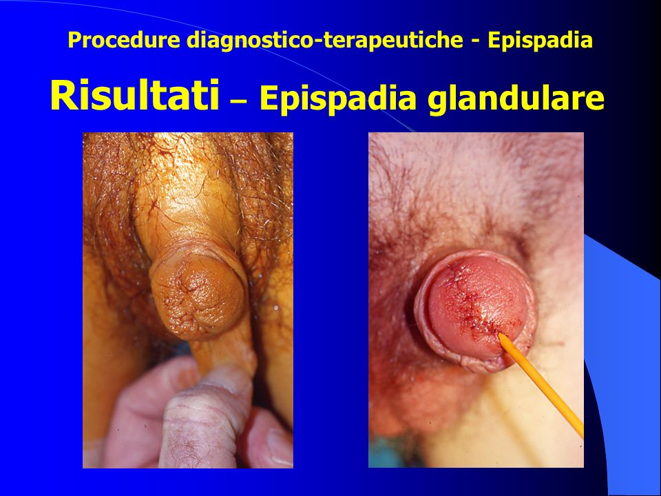 Risultati – Epispadia glandulare