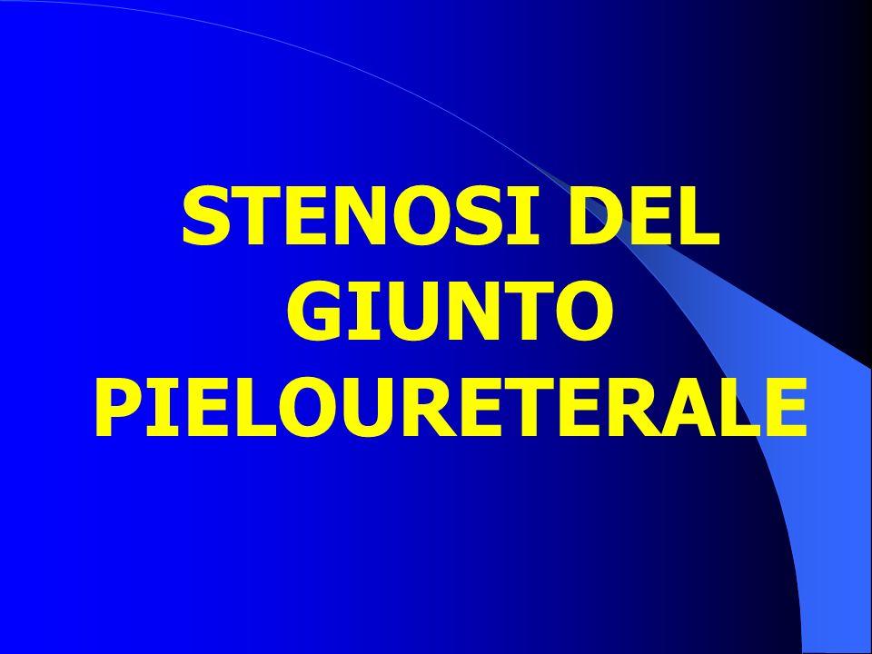 STENOSI DEL GIUNTO PIELOURETERALE