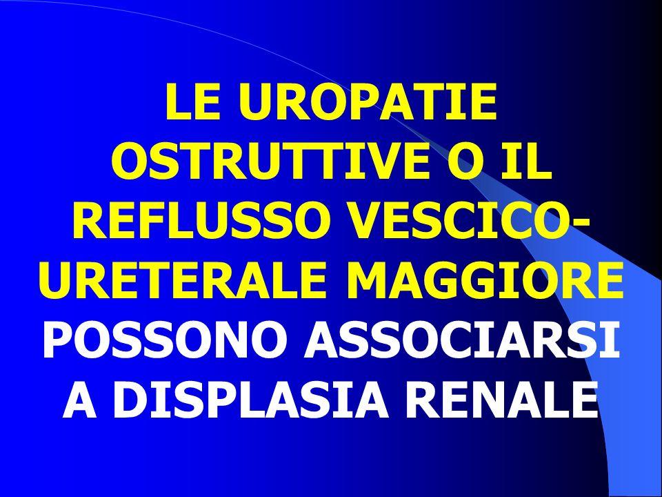 LE UROPATIE OSTRUTTIVE O IL REFLUSSO VESCICO- URETERALE MAGGIORE POSSONO ASSOCIARSI A DISPLASIA RENALE