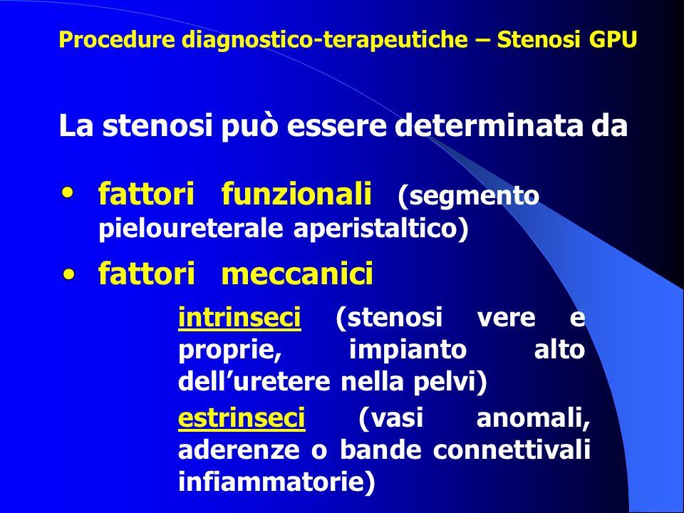 La stenosi può essere determinata da Procedure diagnostico-terapeutiche – Stenosi GPU fattori funzionali (segmento pieloureterale aperistaltico) fatto