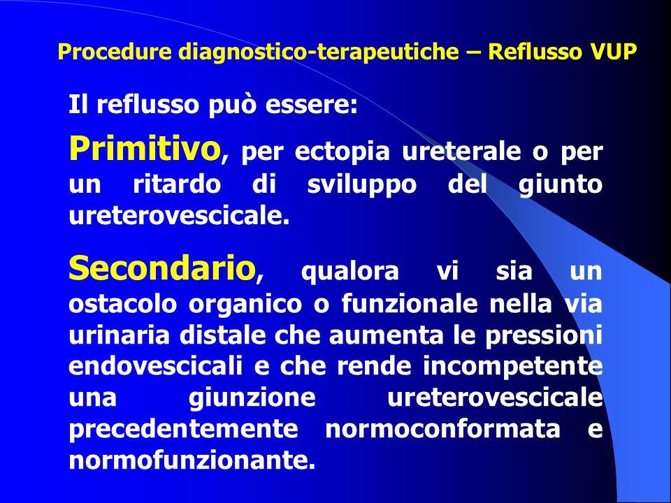 Il reflusso può essere: Primitivo, per ectopia ureterale o per un ritardo di sviluppo del giunto ureterovescicale. Secondario, qualora vi sia un ostac