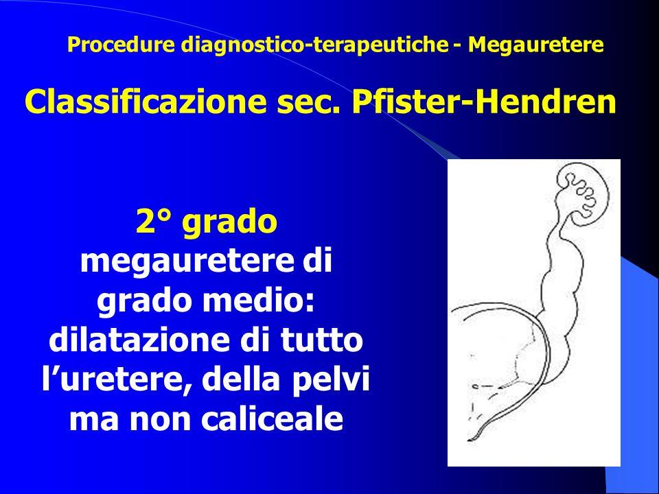 Classificazione sec. Pfister-Hendren 2° grado megauretere di grado medio: dilatazione di tutto l'uretere, della pelvi ma non caliceale Procedure diagn