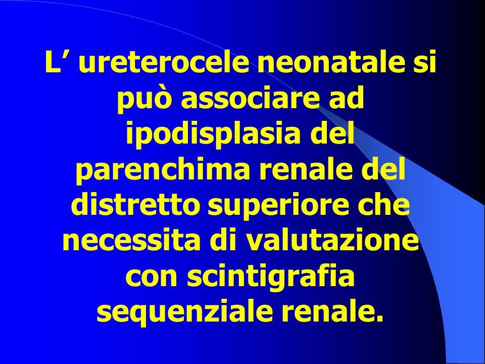 L' ureterocele neonatale si può associare ad ipodisplasia del parenchima renale del distretto superiore che necessita di valutazione con scintigrafia