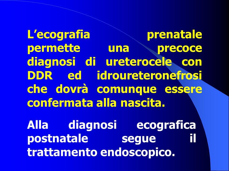 L'ecografia prenatale permette una precoce diagnosi di ureterocele con DDR ed idroureteronefrosi che dovrà comunque essere confermata alla nascita. Al