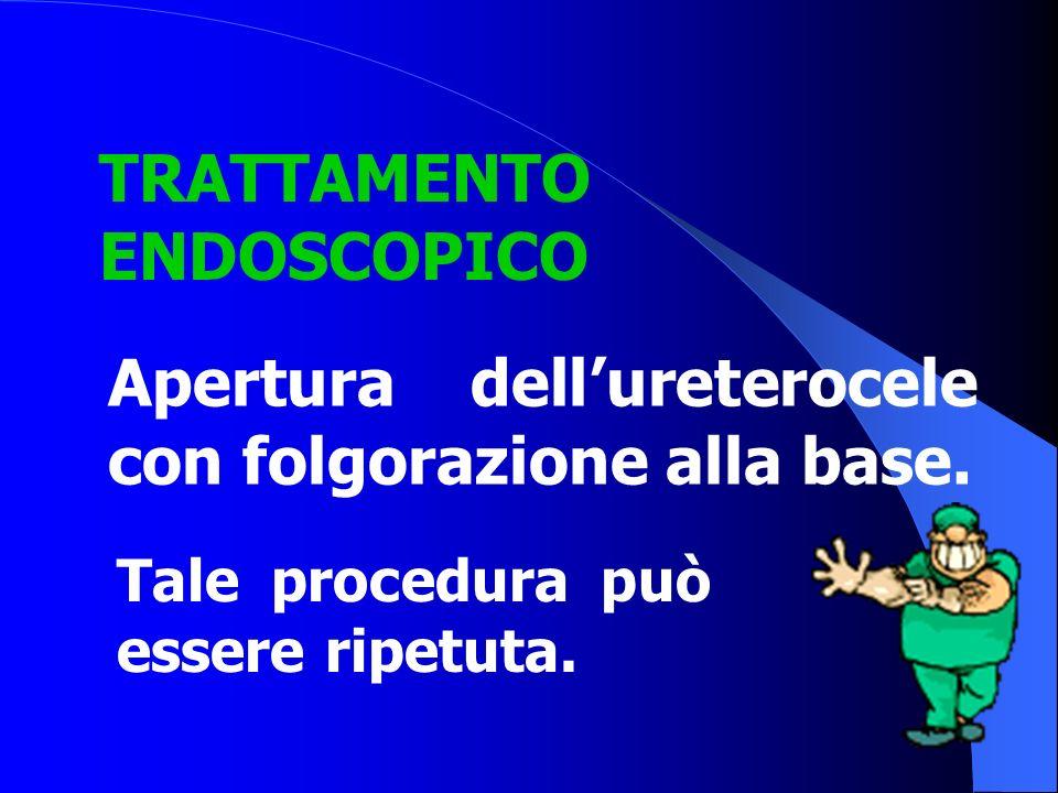 TRATTAMENTO ENDOSCOPICO Tale procedura può essere ripetuta. Apertura dell'ureterocele con folgorazione alla base.