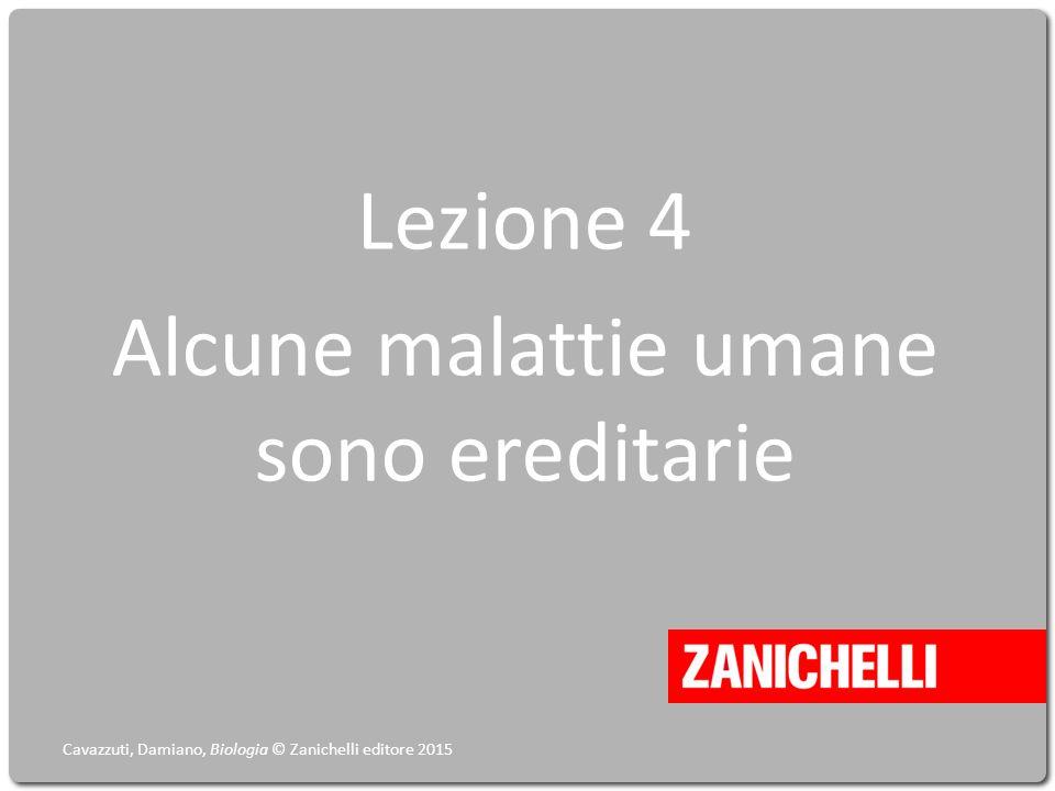 Lezione 4 Alcune malattie umane sono ereditarie Cavazzuti, Damiano, Biologia © Zanichelli editore 2015