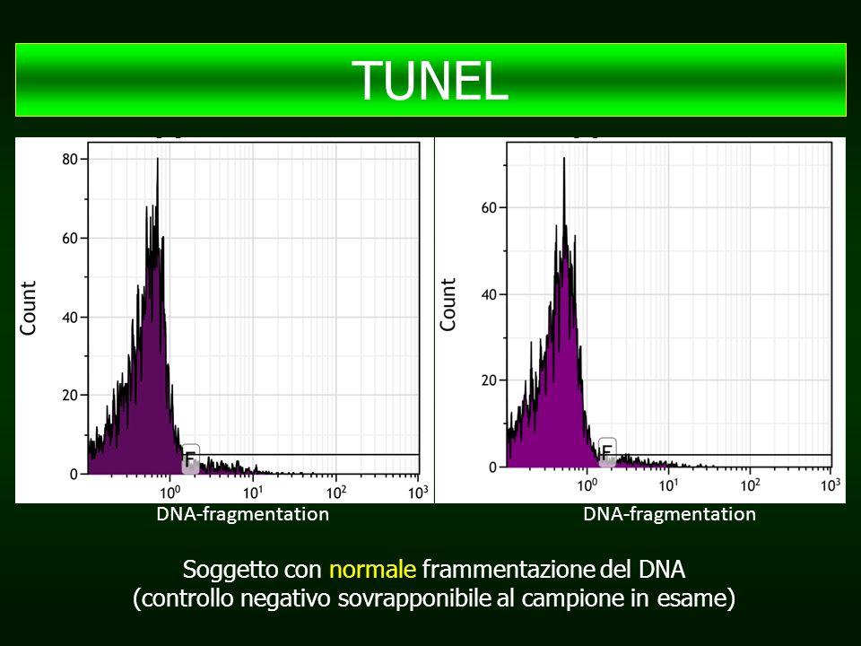 DNA-fragmentation Soggetto con normale frammentazione del DNA (controllo negativo sovrapponibile al campione in esame) TUNEL