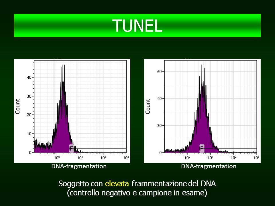 DNA-fragmentation Soggetto con elevata frammentazione del DNA (controllo negativo e campione in esame) TUNEL