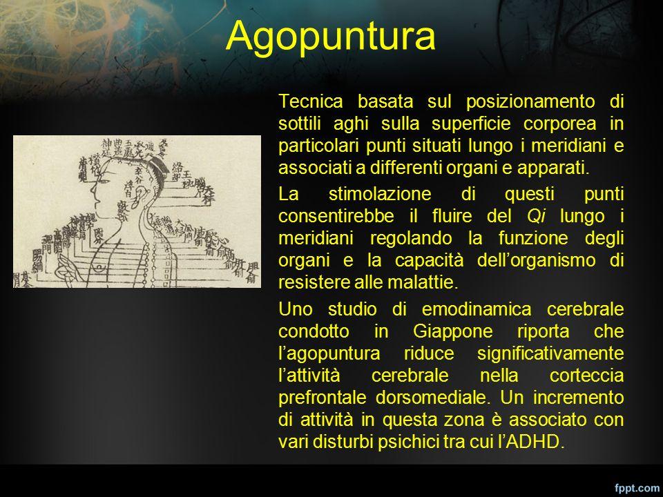 Agopuntura Tecnica basata sul posizionamento di sottili aghi sulla superficie corporea in particolari punti situati lungo i meridiani e associati a di