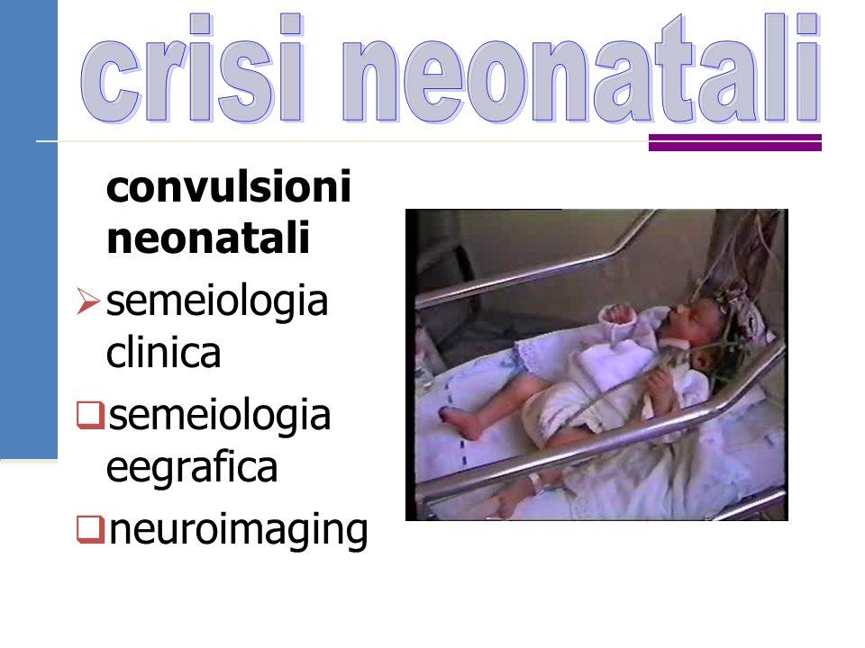 convulsioni neonatali  semeiologia clinica  semeiologia eegrafica  neuroimaging