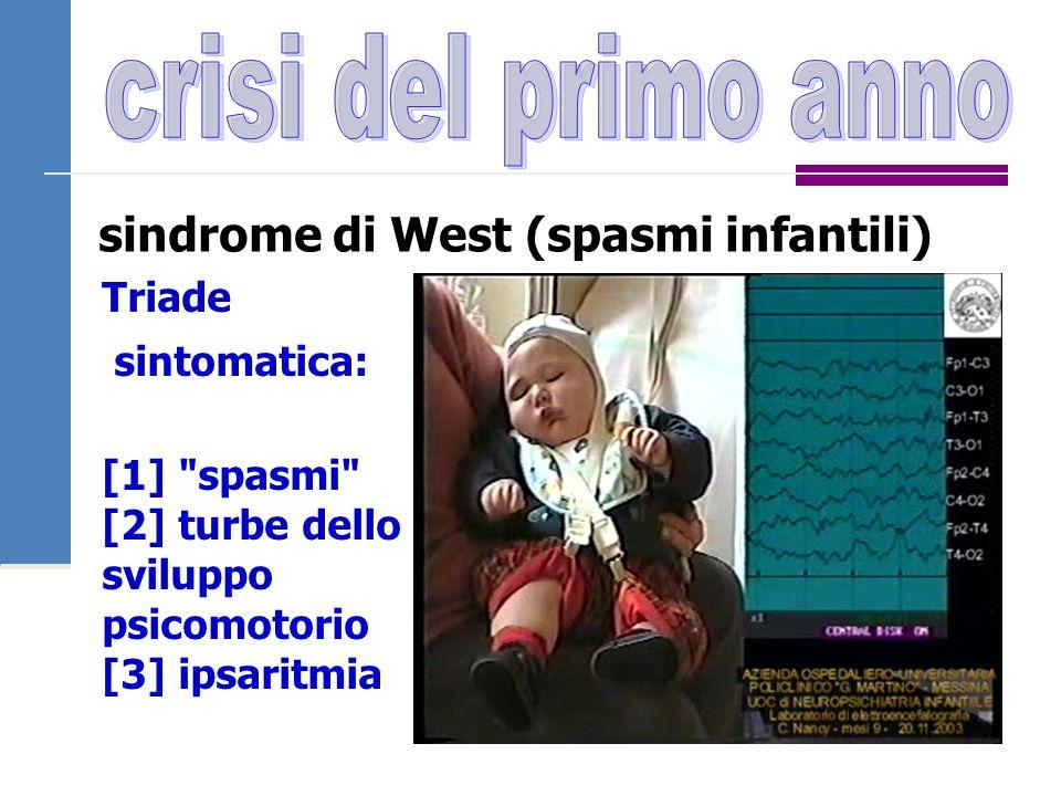 sindrome di West (spasmi infantili) Triade sintomatica: [1]