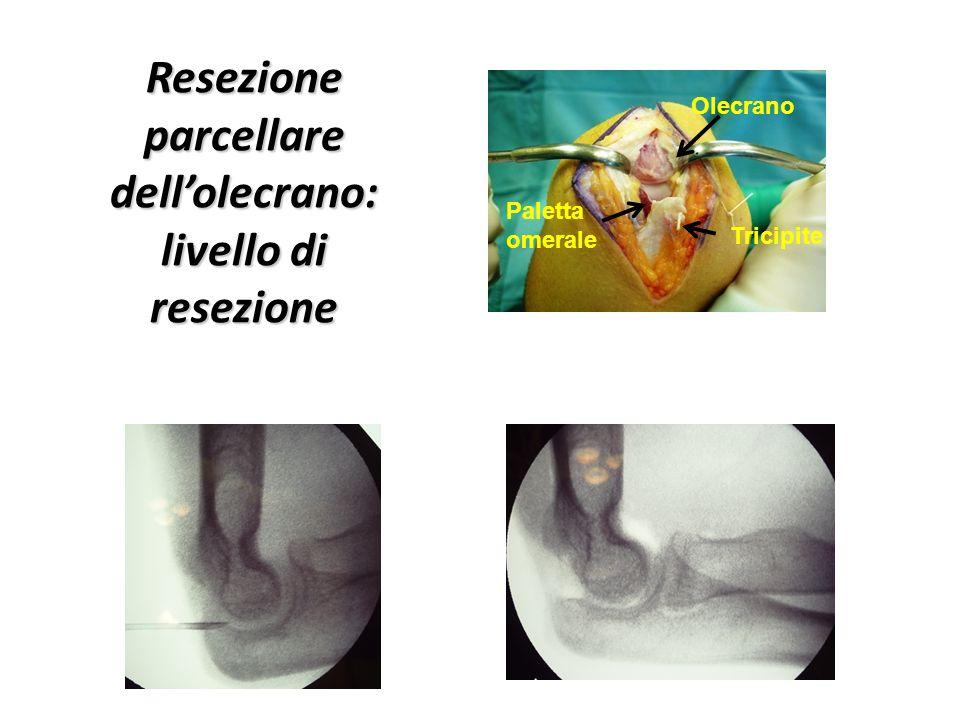 Olecrano Paletta omerale Tricipite Resezione parcellare dell'olecrano: livello di resezione