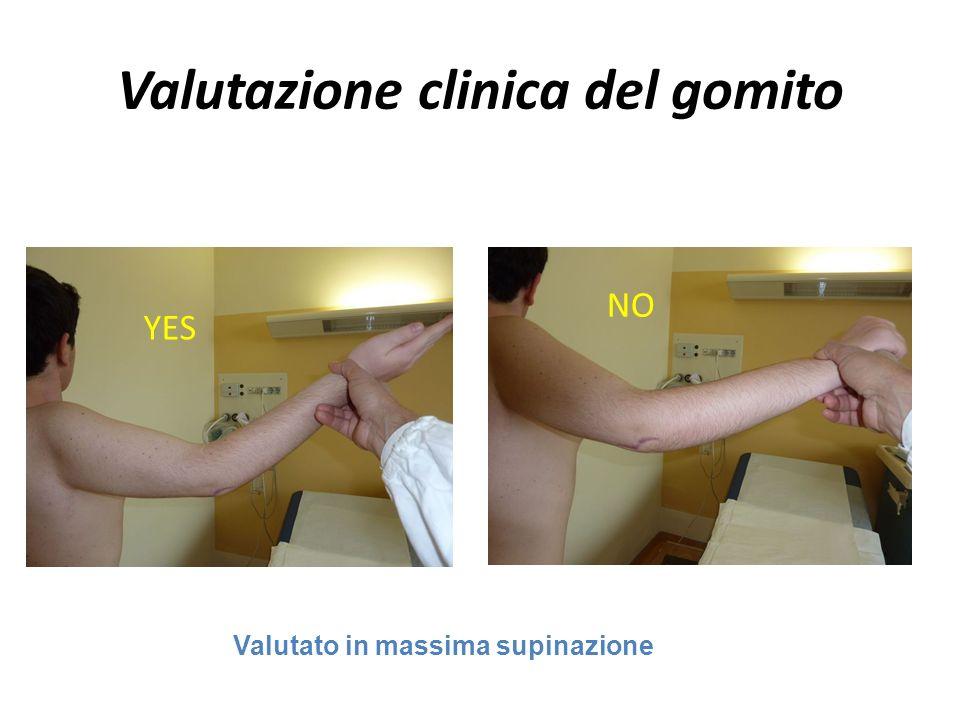 Valutazione clinica del gomito YES Valutato in massima supinazione NO