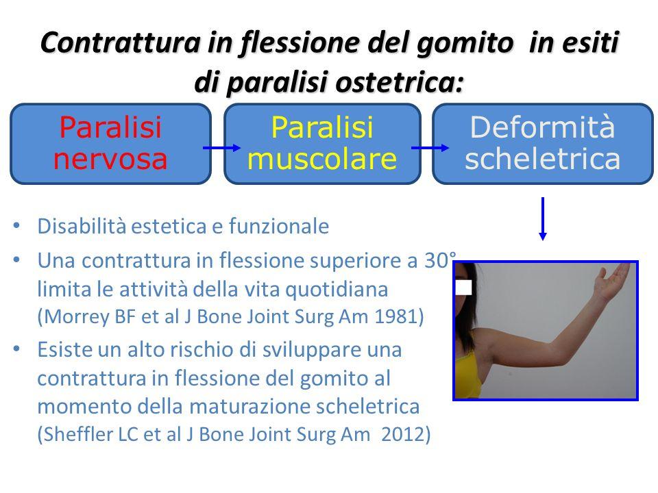 Disabilità estetica e funzionale Una contrattura in flessione superiore a 30° limita le attività della vita quotidiana (Morrey BF et al J Bone Joint S