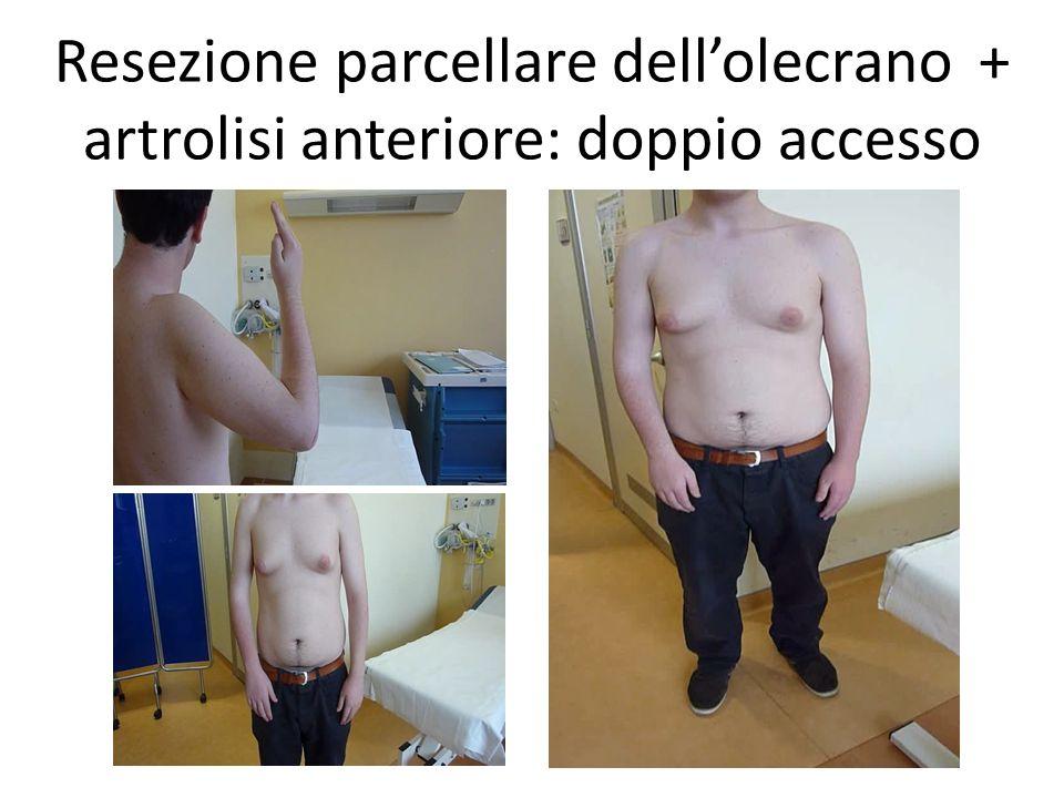 Resezione parcellare dell'olecrano + artrolisi anteriore: doppio accesso