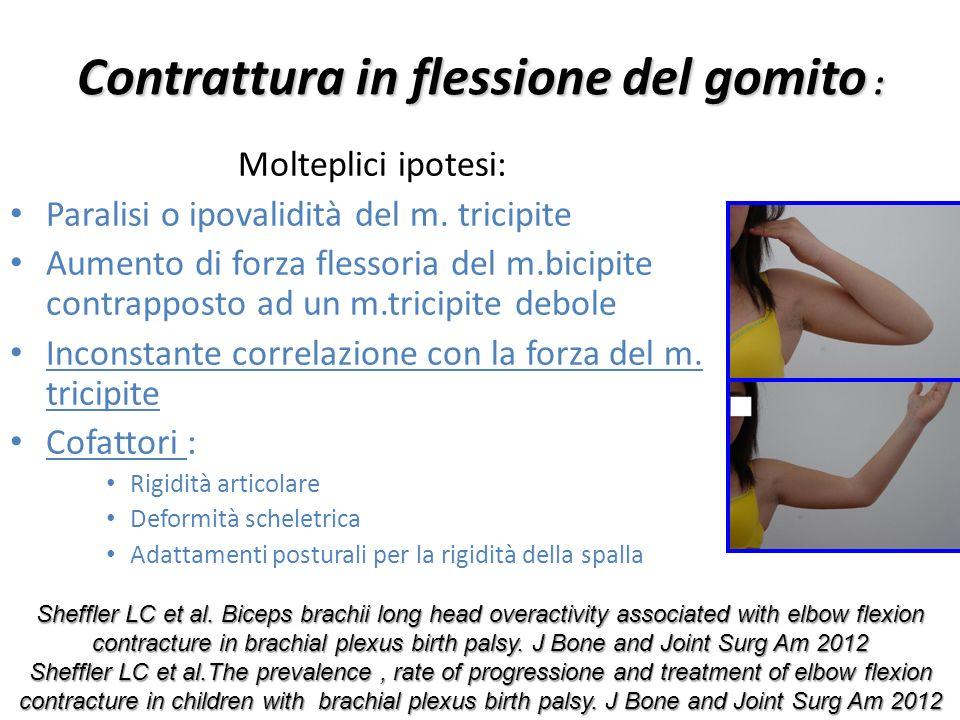 Contrattura in flessione del gomito : Molteplici ipotesi: Paralisi o ipovalidità del m. tricipite Aumento di forza flessoria del m.bicipite contrappos