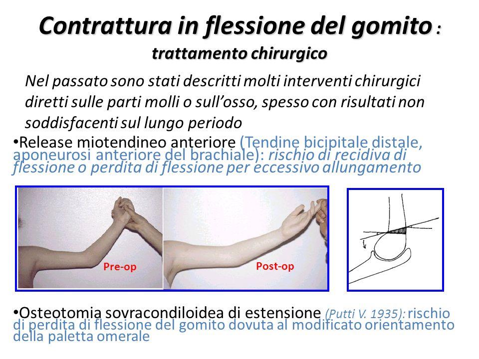 Contrattura in flessione del gomito : trattamento chirurgico Nel passato sono stati descritti molti interventi chirurgici diretti sulle parti molli o