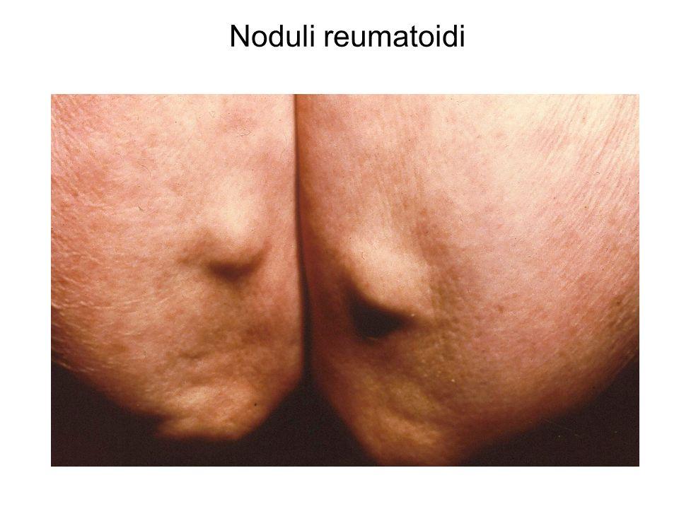 Noduli reumatoidi