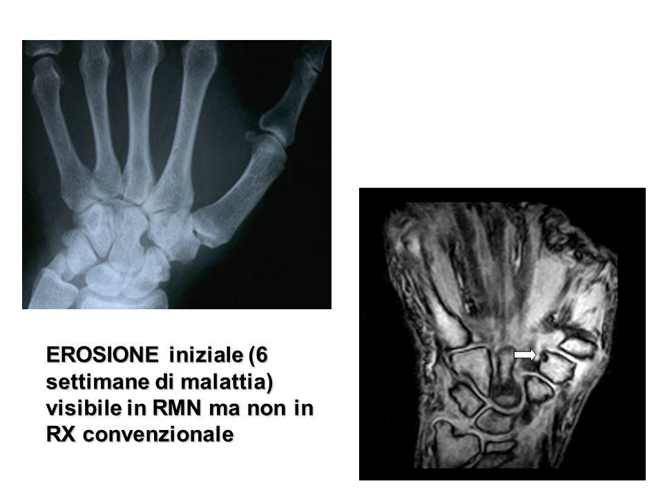 EROSIONE iniziale (6 settimane di malattia) visibile in RMN ma non in RX convenzionale