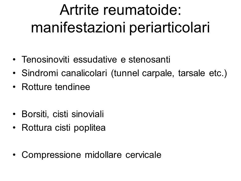 Artrite reumatoide: manifestazioni periarticolari Tenosinoviti essudative e stenosanti Sindromi canalicolari (tunnel carpale, tarsale etc.) Rotture tendinee Borsiti, cisti sinoviali Rottura cisti poplitea Compressione midollare cervicale