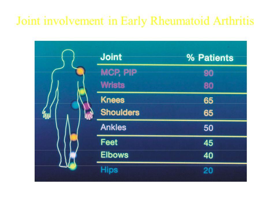 Joint involvement in Early Rheumatoid Arthritis