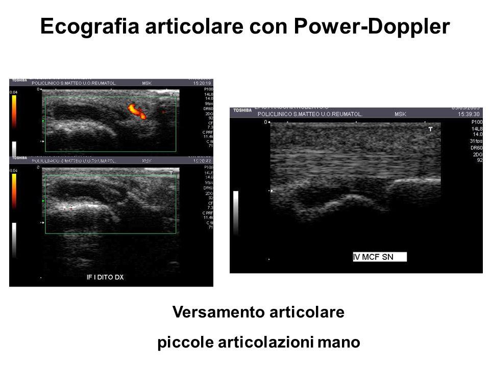 Versamento articolare piccole articolazioni mano Ecografia articolare con Power-Doppler